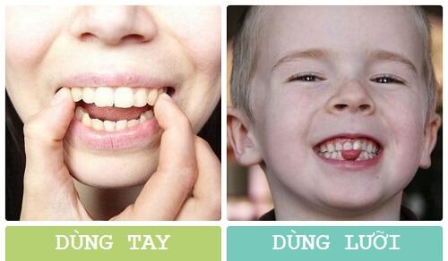 Cách làm răng bớt hô hiệu quả