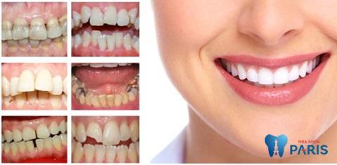 Các trường hợp nên chụp răng sứ