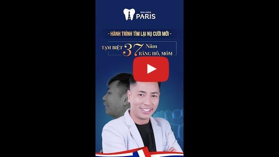 Khách hàng Đức Lộc chia sẻ sau khi bọc răng sứ tại Nha khoa Paris