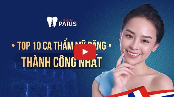 Top 10 ca thẩm mỹ răng thành công tại Nha khoa Paris