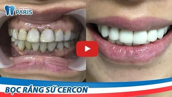 Tìm lại nụ cười hoàn hảo sau khi bọc răng sứ tại Nha khoa Paris