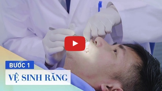 Quy trình bọc răng sứ tại Nha khoa Paris