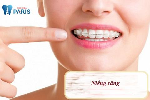 Niềng răng cửa bị hô - Biện pháp chỉnh nha phổ biến