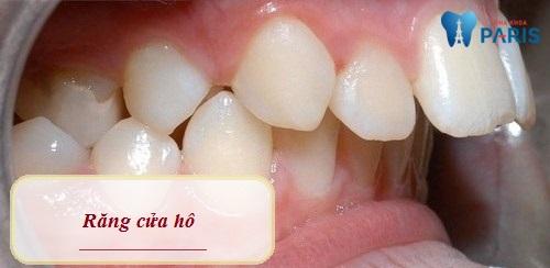 Răng cửa hô do cấu trúc xương hàm