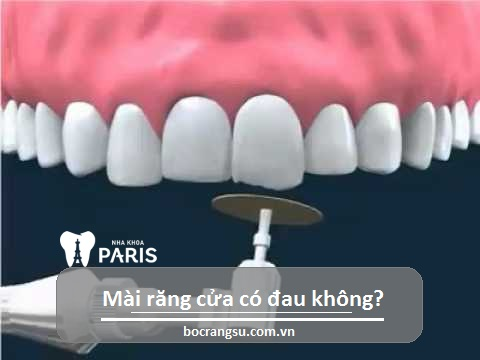 Mài răng cửa có đau không phụ thuộc vào tay nghề bác sĩ và kỹ thuật phục hình