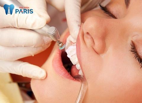 Mài răng cửa không khiến răng yếu đi nếu được thực hiện đúng kỹ thuật và công nghệ phục hình đảm bảo
