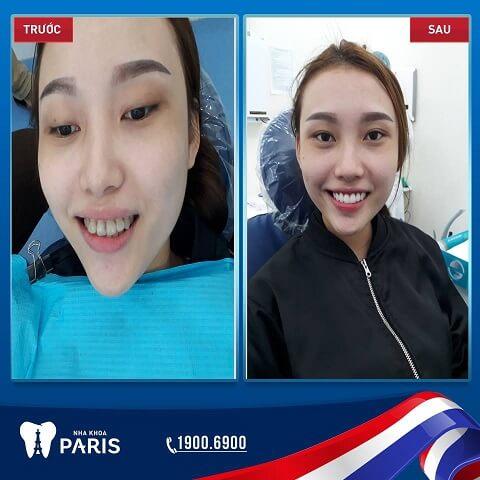 Nụ cười thay đổi toàn diện khi dán răng sứ Veneer tại Nha khoa Paris