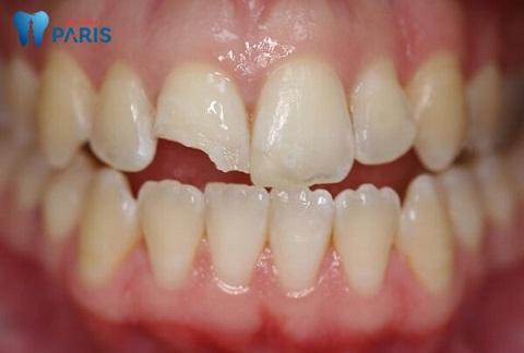 Mài răng cửa được chỉ định trong trường hợp răng sứt mẻ lớn, biện pháp trám răng không mang lại hiệu quả
