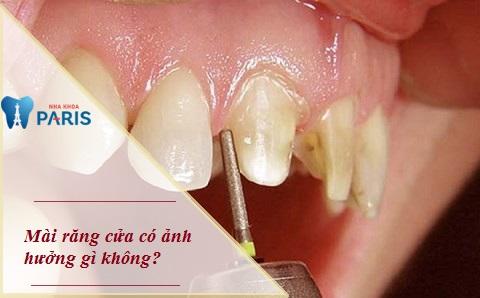 Mài răng cửa có ảnh hưởng gì không là thắc mắc của nhiều khách hàng