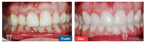 Mài răng - Bọc sứ với trường hợp răng hô nhẹ