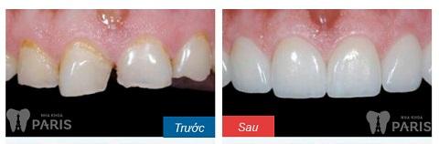 Khách hàng mài răng - bọc sứ với trường hợp răng cửa gãy vỡ lớn
