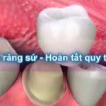 Quy trình bọc răng sứ đúng chuẩn quốc tế chỉ qua 2 lần hẹn