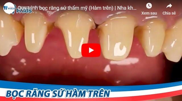 Video quá trình bọc răng sứ thẩm mỹ