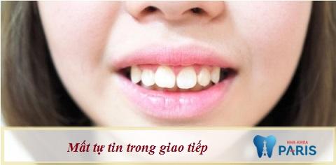 Răng vổ khiến người bệnh mất tự tin nên nhiều người băn khoăn: Làm sao để răng đỡ vổ?
