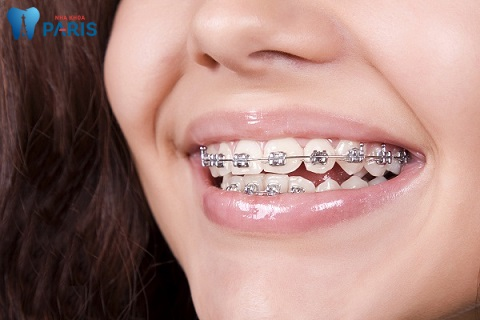 Niềng răng - Biện pháp khắc phục răng vổ trong trường hợp nặng