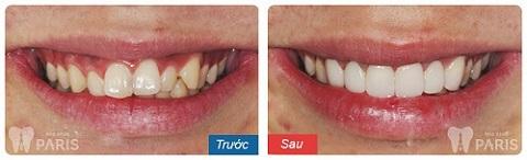 Bọc răng sứ - Giải pháp tối ưu khắc phục tình trạng răng vổ trong trường hợp nhẹ