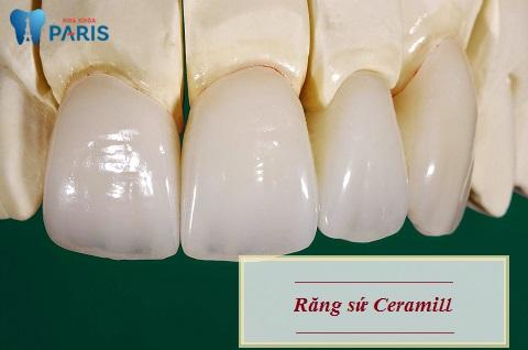 Răng sứ Ceramill có tốt không là thắc mắc của nhiều khách hàng
