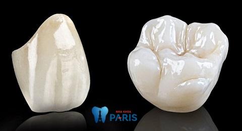 Răng sứ Ceramill có màu sắc tự nhiên giống răng thật