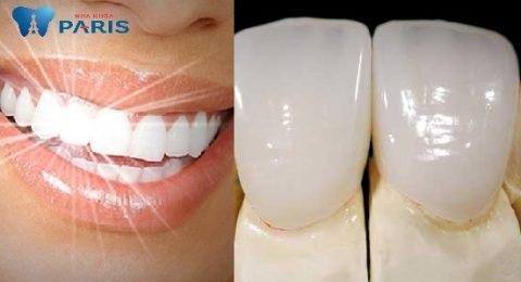 Răng sứ thẩm mỹ 4S, 5S - Mang lại vẻ đẹp tự nhiên, duy trì tuổi thọ trọn đời