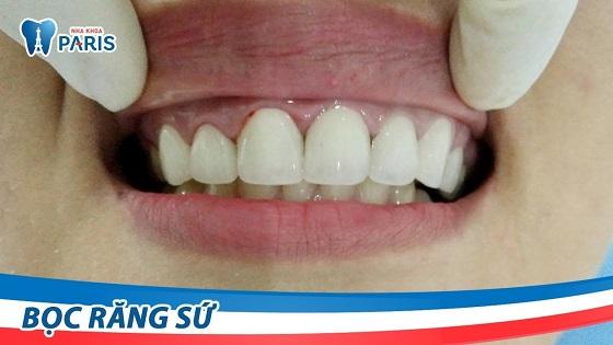Khách hàng bày tỏ cảm nhận sau khi bọc răng sứ Cercon tại Nha khoa Paris