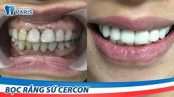 Khách hàng nói gì sau khi bọc răng sứ Cercon?
