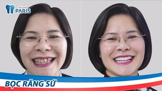 Khách hàng thay đổi ra sao khi bọc răng sứ nguyên hàm tại Nha khoa Paris