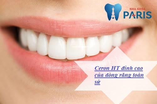 Răng sứ cercon HT đỉnh cao của dòng răng toàn sứ giá bao nhiêu?