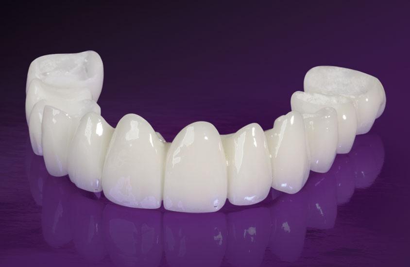 Răng sứ Cercon HT giá bao nhiêu?