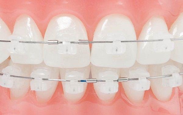 bọc răng sứ xong có niềng được không răng