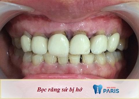 bọc răng sứ xong có niềng được không, bọc răng sứ rồi có niềng răng được không