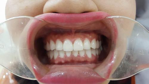 bọc răng có hối hận không