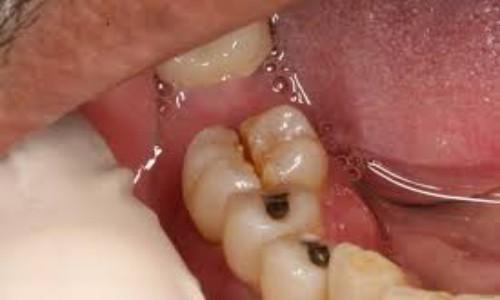 Nhổ răng hàm sâu mất bao nhiêu?