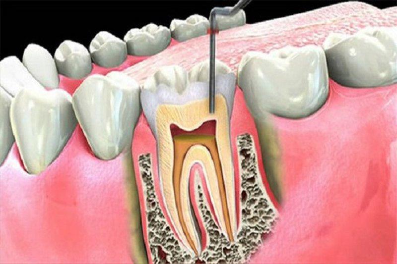 hút tủy răng đau cỡ nào