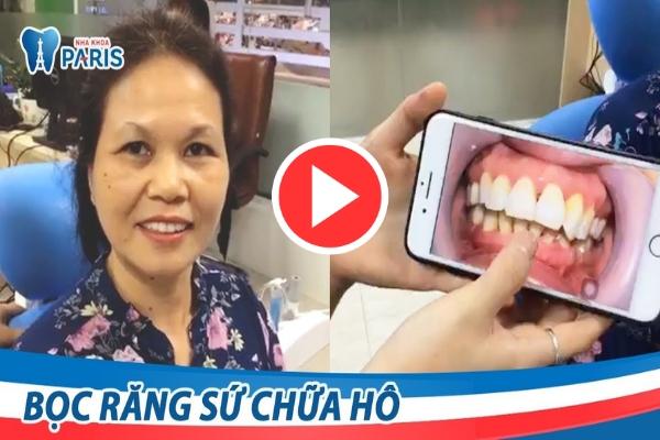 Video cách làm răng hết hô