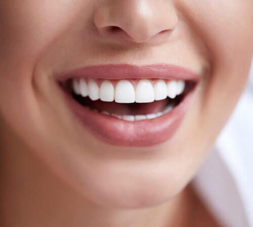 Bọc răng sứ cho răng cửa lệch