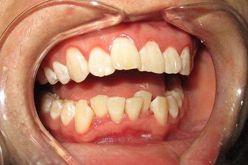 Răng cửa hàm trên mọc lệch ra ngoài